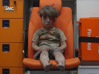 5-year-old is symbol of devastation in Aleppo