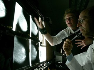Study shows a drop in breast cancer deaths